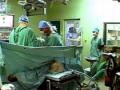 Laparoskopická operace tlustého střeva