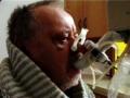 Kuřácká plicní nemoc